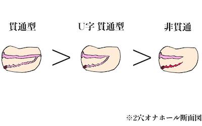 【図解】2穴オナホール種類別洗いやすさの順番